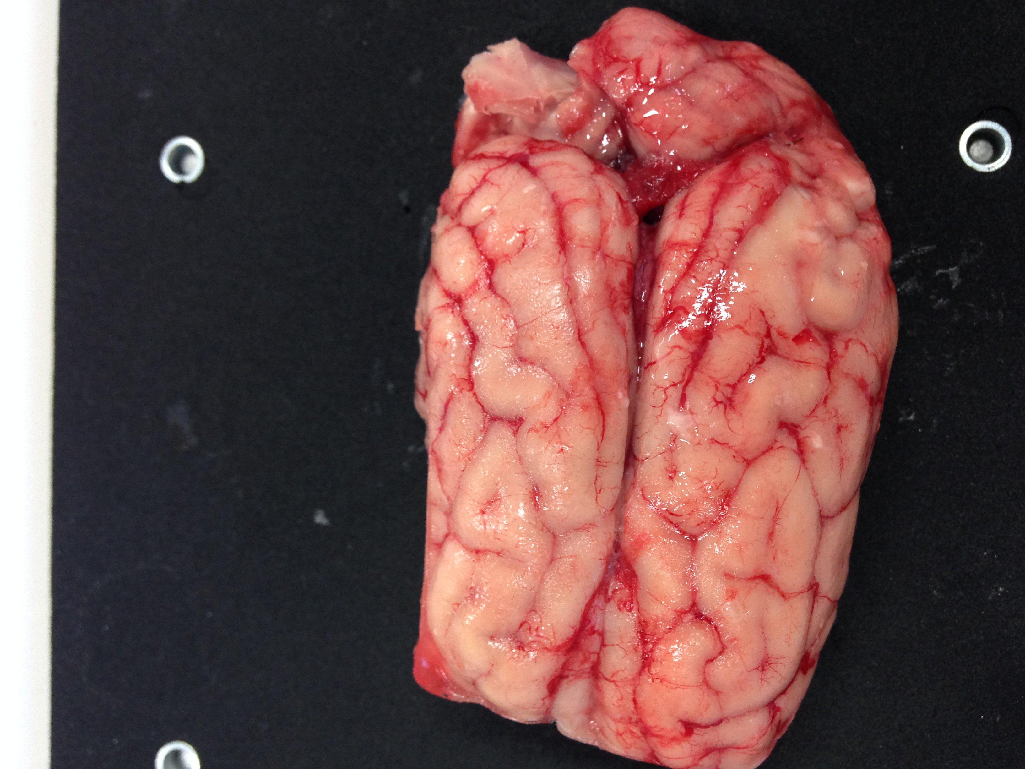 maladie alzheimer stade avance